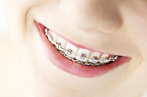 Braces in San Angelo