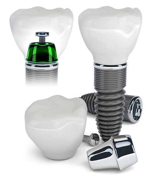 San Angelo Dental Implants