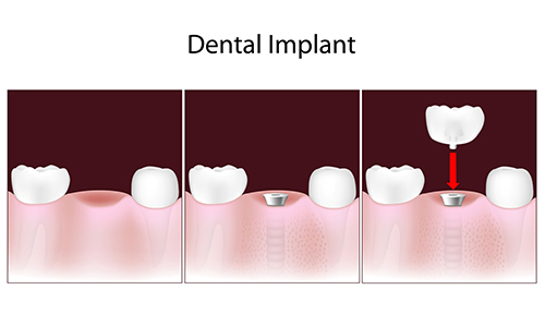 Dental Implants in San Angelo