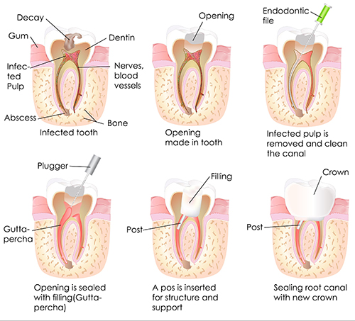 San Angelo Root Canals